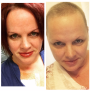 #MyLeftBoob #BreastCancer Chronicles: Fighting Fruit Flies and Managing Madness